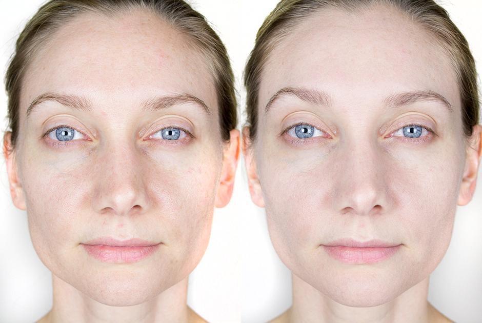 Какой тональный крем подойдет для сухой кожи лица